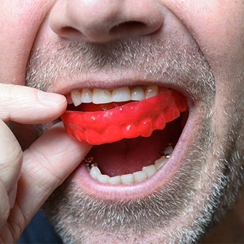 Man placing athletic mouthguard