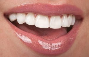 Woman smiling with top row of teeth showing